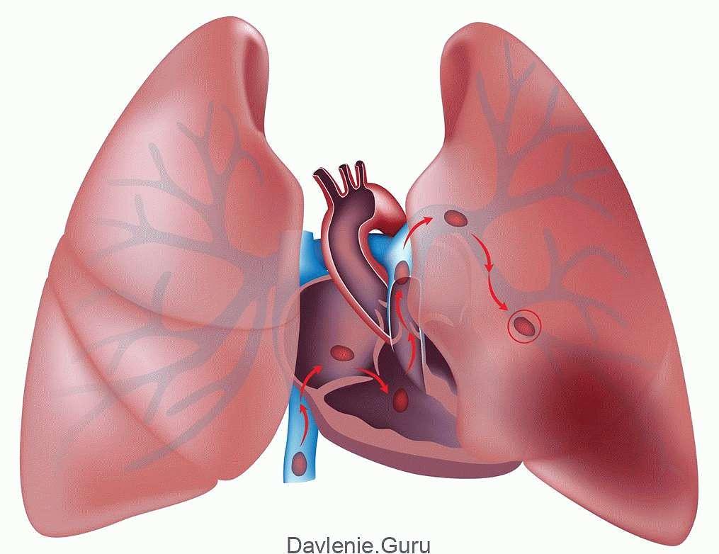 Тромб в легочной артерии