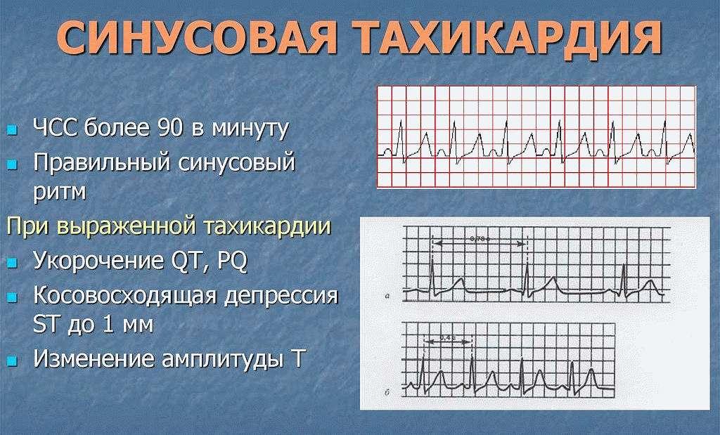Синусовая форма тахикардии