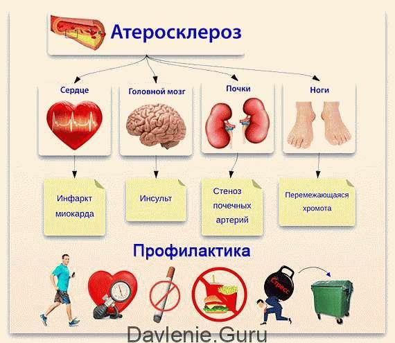 Профилактики атеросклероза почечных сосудов