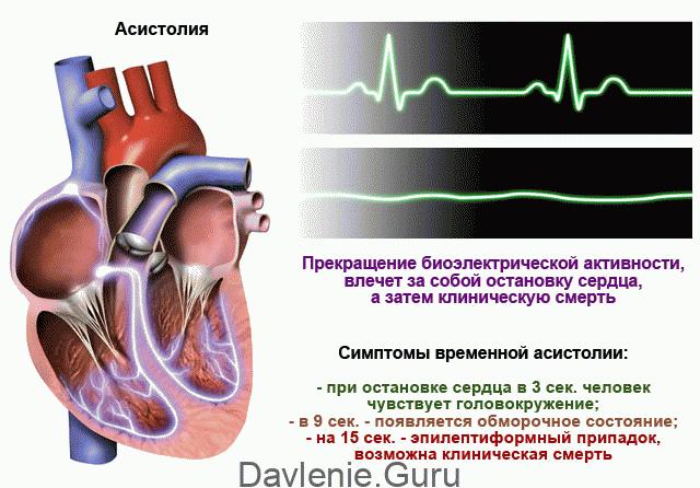 Асистолия сердца