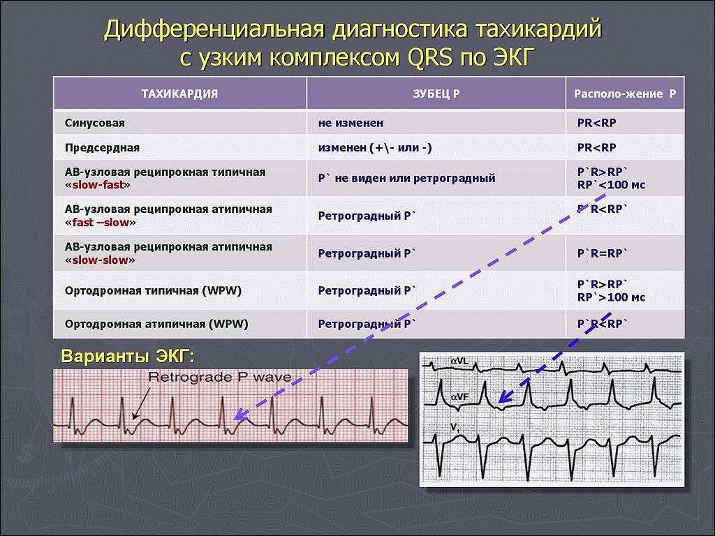 Тахикардия методы диагностика