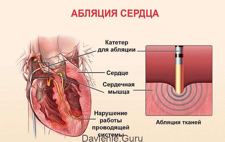 Радиочастотная катетерная абляция сердца