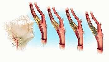 Атеросклероз позвоночника — симптомы и лечение