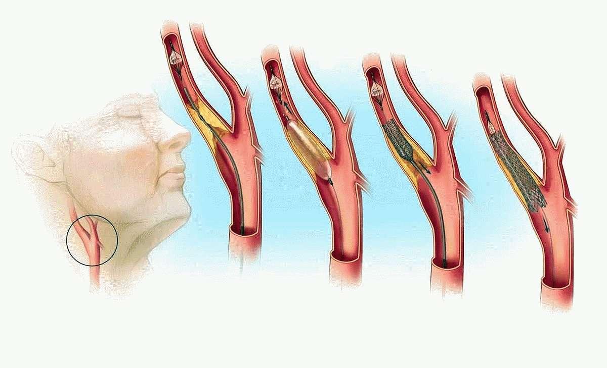 Атеросклероз позвоночных артерий