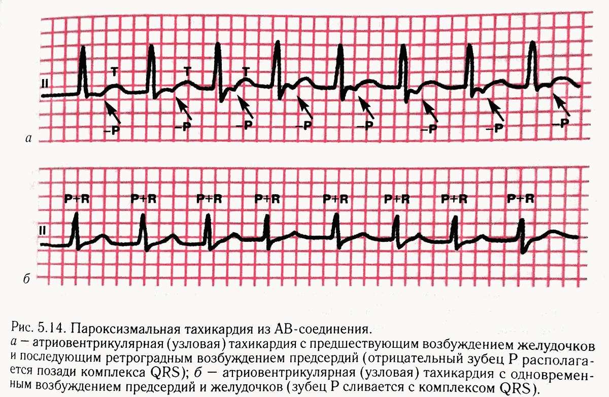 Пароксизмальная форма тахикардии