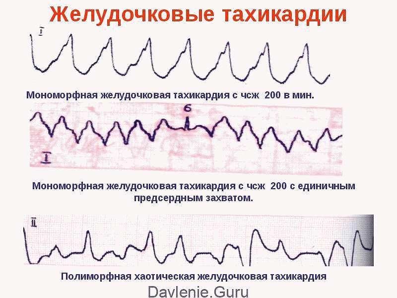 Желудочковая тахикардия на ЭКГ