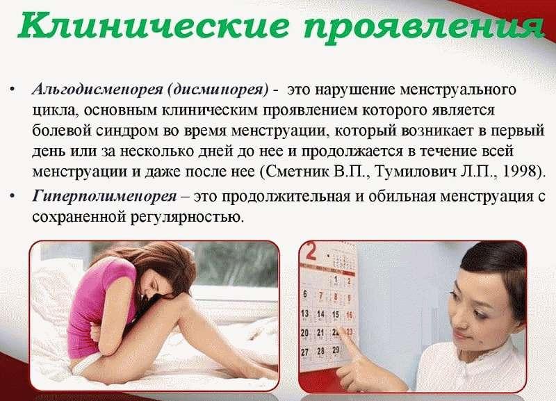 Альгодисменорея у женщин