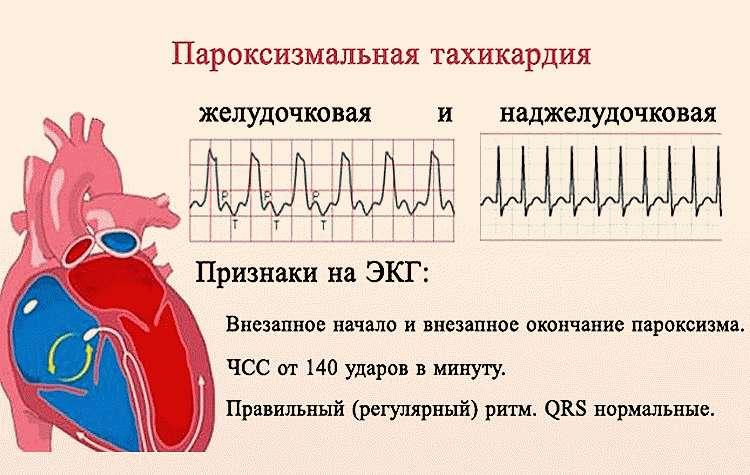 ЭКГ-признаки тахикардии