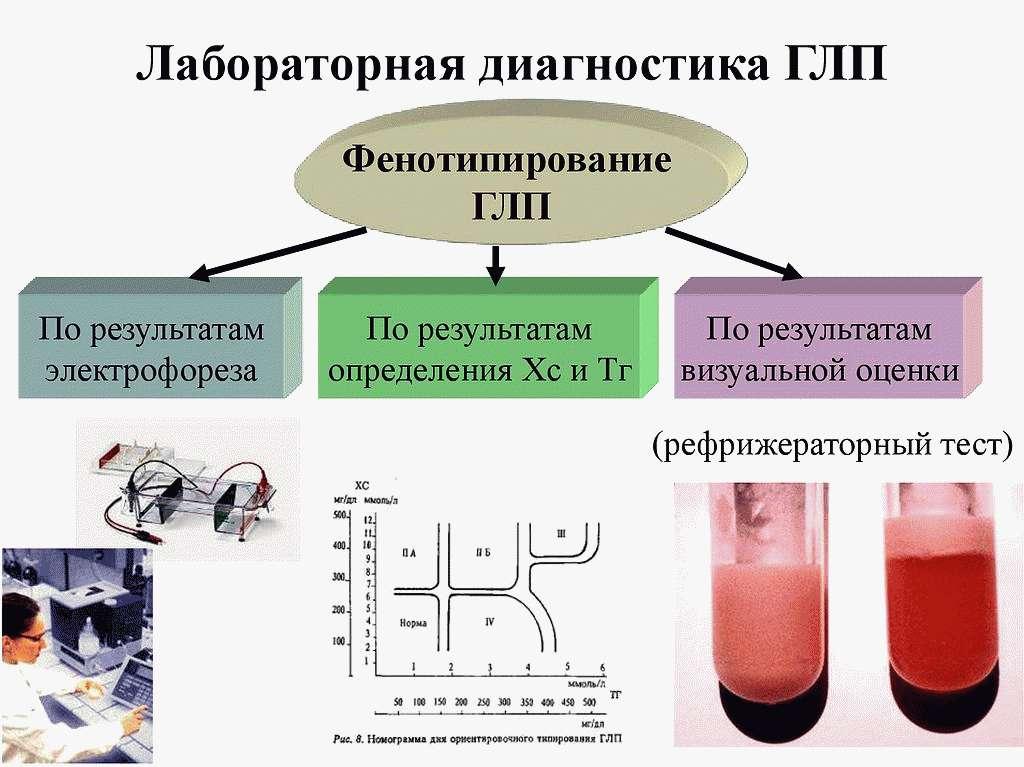 Лабораторная диагностика атеросклероза