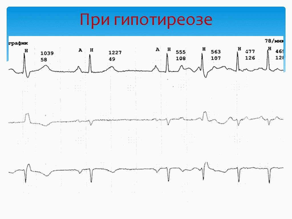 Тахикардия при гипотиреозе
