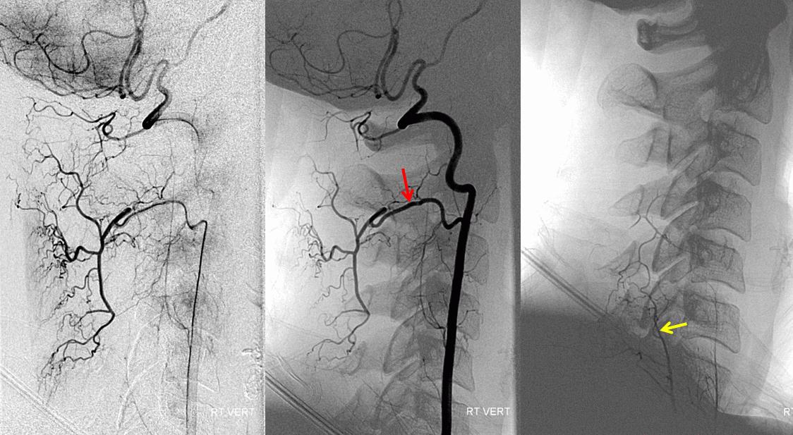 Гипоплазия левой позвоночной артерии