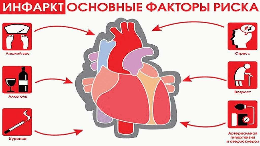 инфаркт миокарда факторы риска