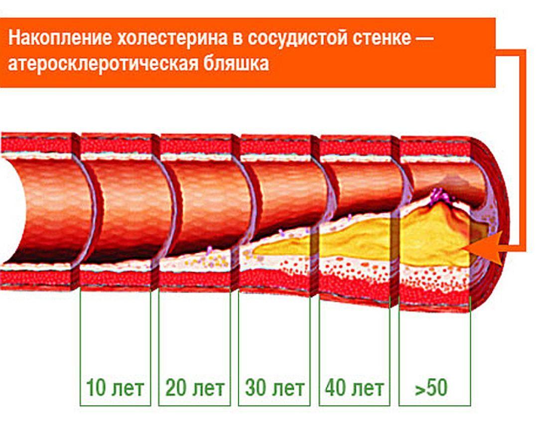 развитие атеросклеротической бляшки