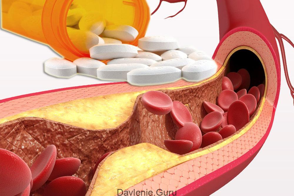 Статины от развития атеросклероза